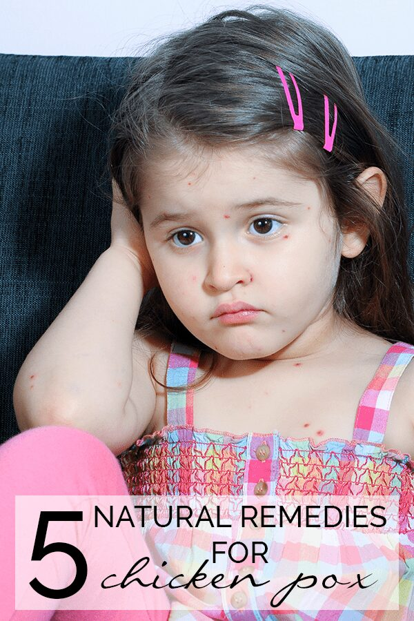 5 Natural Remedies for Chicken Pox